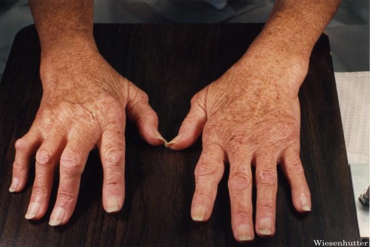 reumatism i fötterna